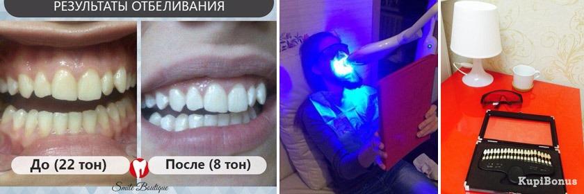 Отбеливание зубов гелем и лампой